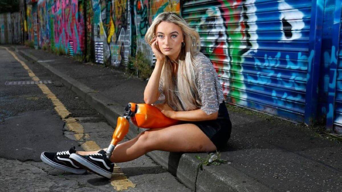 Bernadette Hagans-Amputee Model