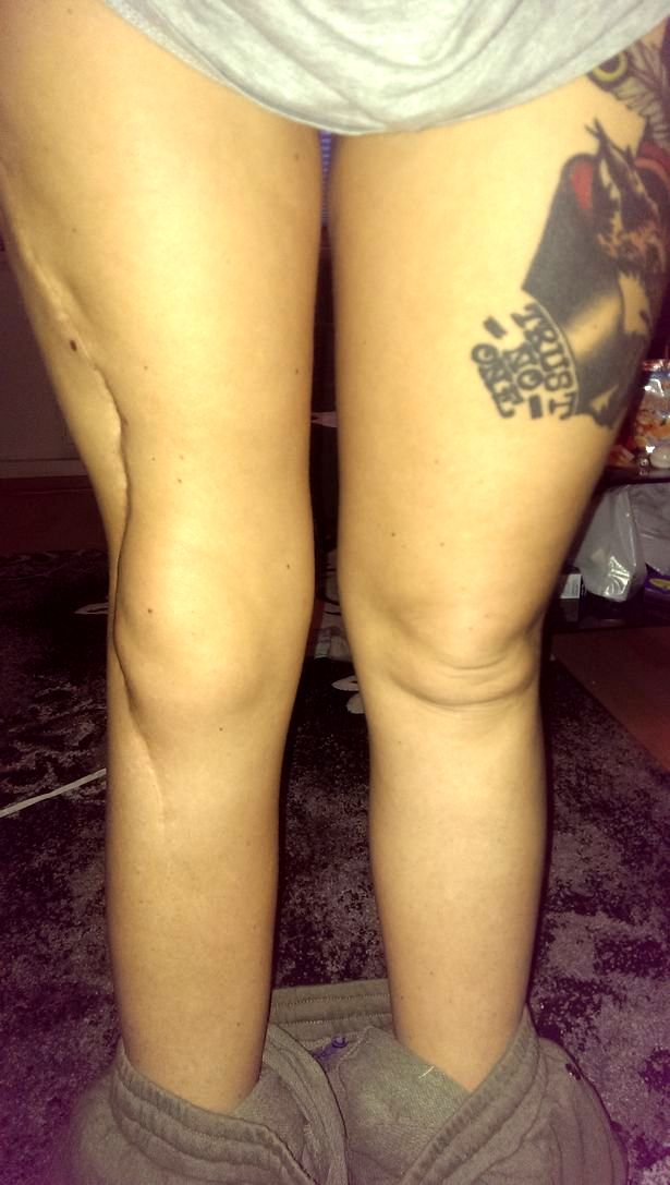 Lisa's right leg was left weak and brittle following her cancer at age 12
