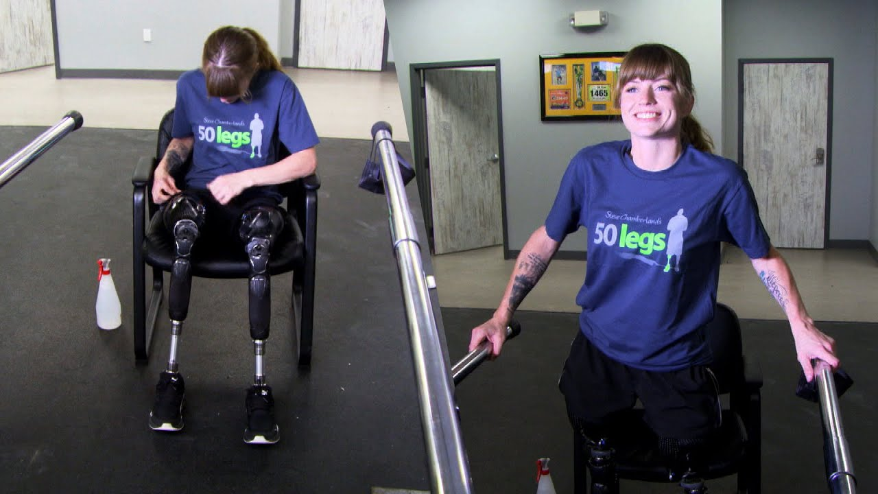 Woman Who Lost Legs